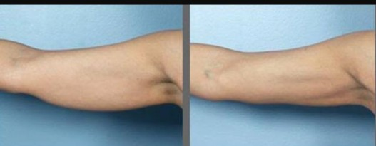 Fat Freezing Results on Arms