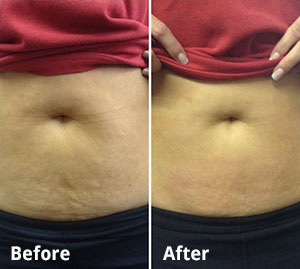 3d-lipo-before-after-3